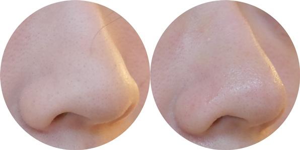 HOLIKA豬鼻-使用前後1.jpg