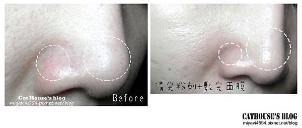 鼻翼的對比圖.jpg