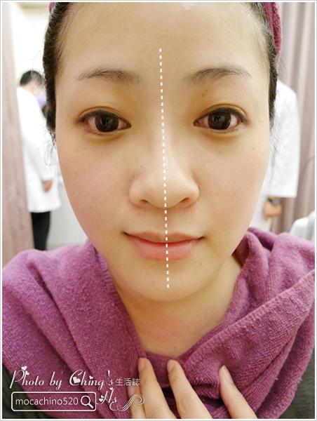 輕鬆找回童顏肌、微笑線。4D美塑拉提。口內口外拉提 (18).jpg