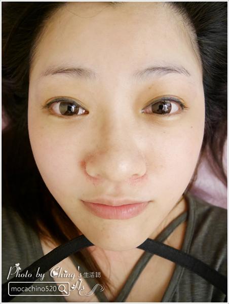 輕鬆找回童顏肌、微笑線。4D美塑拉提。口內口外拉提 (20).jpg