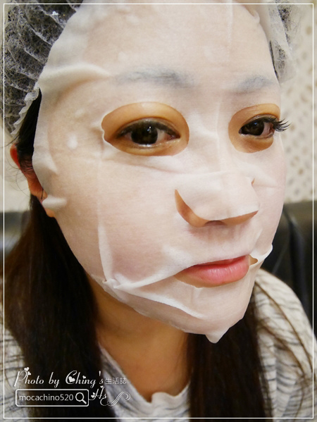 約會前必做的醫美保養。淨美皮膚科診所 雙機雷射 (10).jpg
