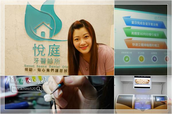 看部戲,做好牙,台北牙醫診所推薦,全瓷冠治療不用等,植牙首推,士林 悅庭牙醫 (1).jpg