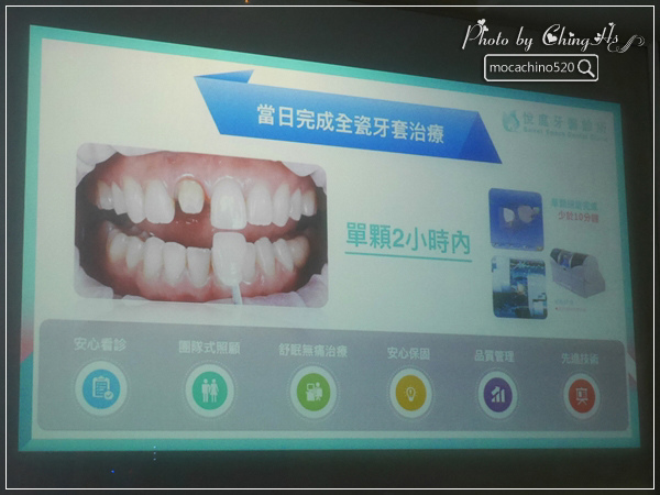 看部戲,做好牙,台北牙醫診所推薦,全瓷冠治療不用等,植牙首推,士林 悅庭牙醫 (7).jpg