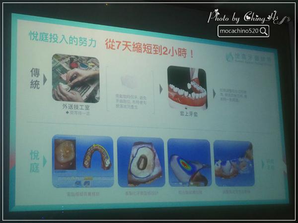 看部戲,做好牙,台北牙醫診所推薦,全瓷冠治療不用等,植牙首推,士林 悅庭牙醫 (9).jpg