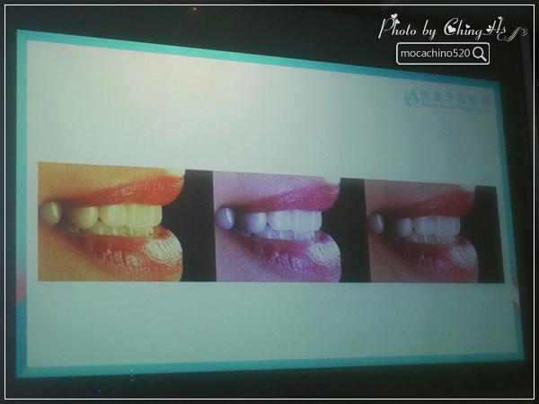 看部戲,做好牙,台北牙醫診所推薦,全瓷冠治療不用等,植牙首推,士林 悅庭牙醫 (11).jpg