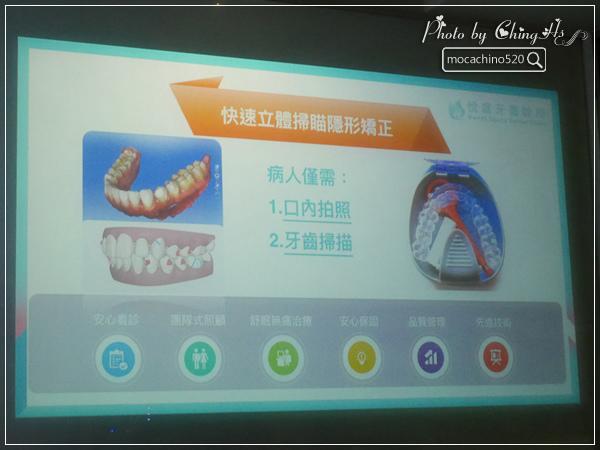 看部戲,做好牙,台北牙醫診所推薦,全瓷冠治療不用等,植牙首推,士林 悅庭牙醫 (14).jpg
