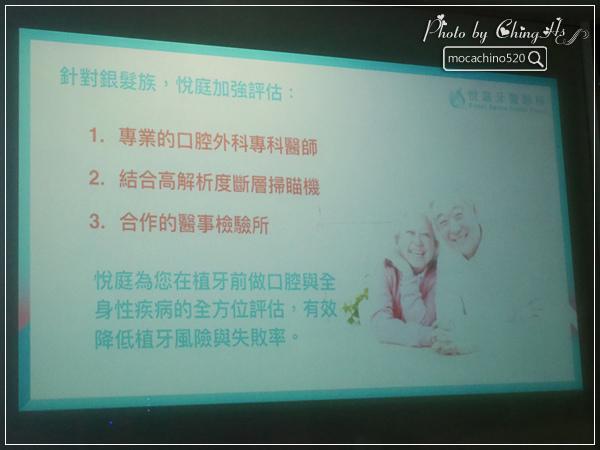 看部戲,做好牙,台北牙醫診所推薦,全瓷冠治療不用等,植牙首推,士林 悅庭牙醫 (13).jpg