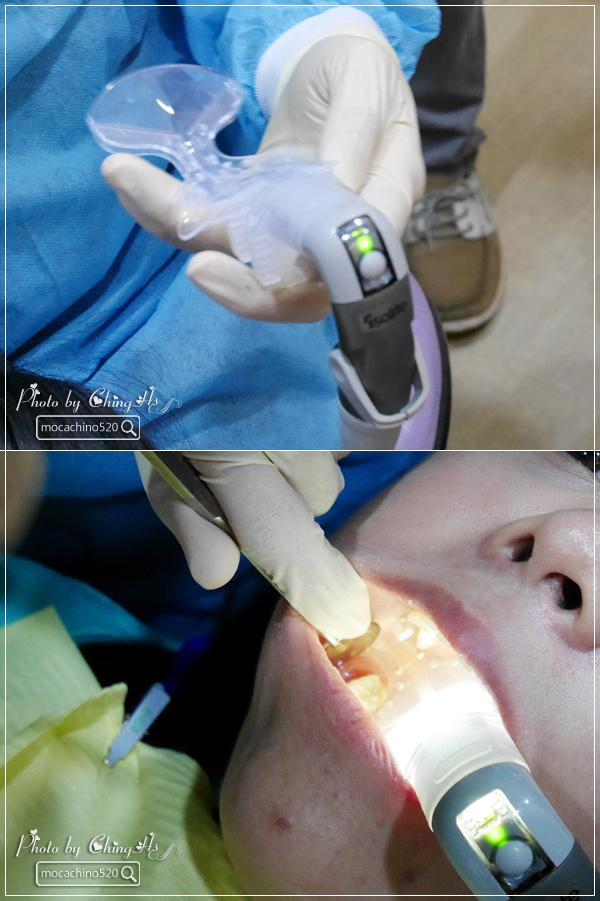 看部戲,做好牙,台北牙醫診所推薦,全瓷冠治療不用等,植牙首推,士林 悅庭牙醫 (19).jpg