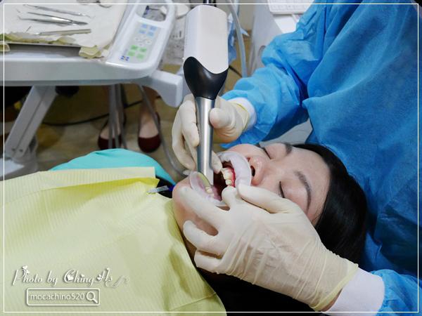 看部戲,做好牙,台北牙醫診所推薦,全瓷冠治療不用等,植牙首推,士林 悅庭牙醫 (16).jpg