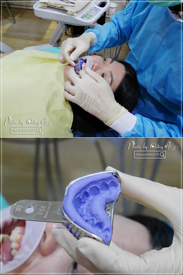 看部戲,做好牙,台北牙醫診所推薦,全瓷冠治療不用等,植牙首推,士林 悅庭牙醫 (18).jpg