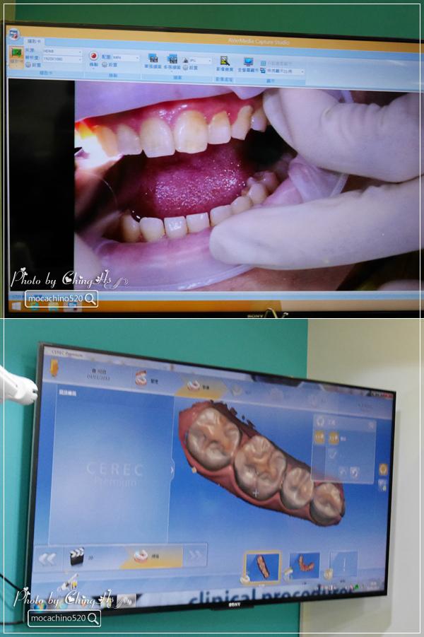 看部戲,做好牙,台北牙醫診所推薦,全瓷冠治療不用等,植牙首推,士林 悅庭牙醫 (17).jpg