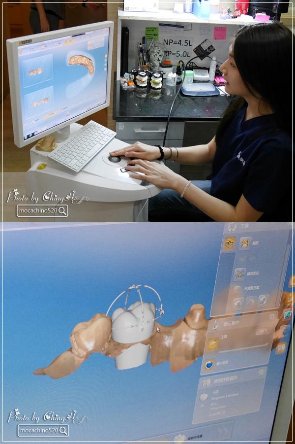 看部戲,做好牙,台北牙醫診所推薦,全瓷冠治療不用等,植牙首推,士林 悅庭牙醫 (20).jpg