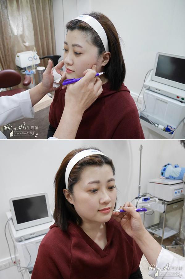 雅美姬-薔薇線雕及玻尿酸塑型分享 (12).jpg