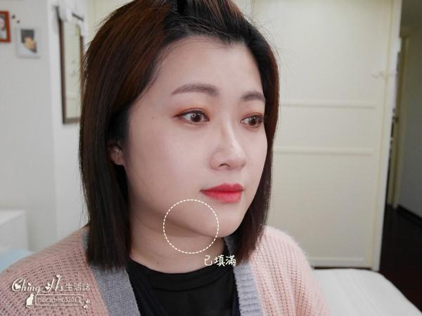 雅美姬-薔薇線雕及玻尿酸塑型分享 (20).jpg