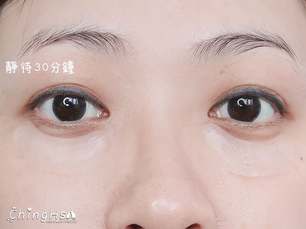 2020微針保養正流行,eFACE+益菲士 超導微針眼膜、超導黑面膜,眼周保養推薦 (16).jpg