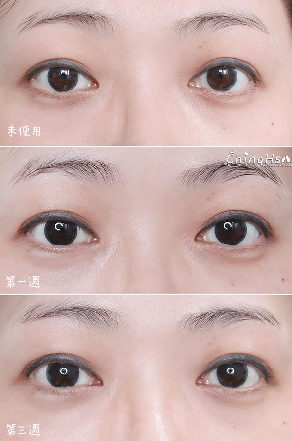 2020微針保養正流行,eFACE+益菲士 超導微針眼膜、超導黑面膜,眼周保養推薦 (23).jpg