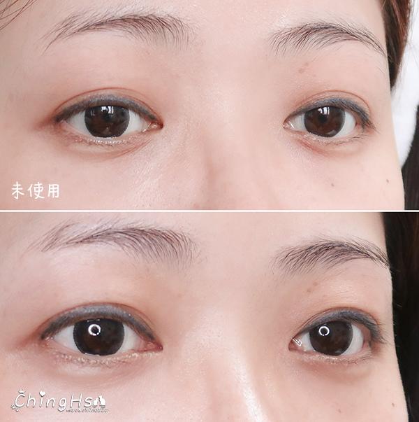 2020微針保養正流行,eFACE+益菲士 超導微針眼膜、超導黑面膜,眼周保養推薦 (24).jpg