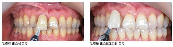 維多麗牙齒美白.JPG
