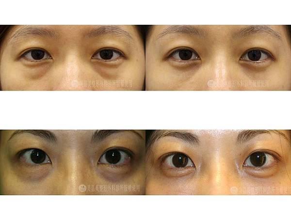 眼袋+浮水印新.jpg