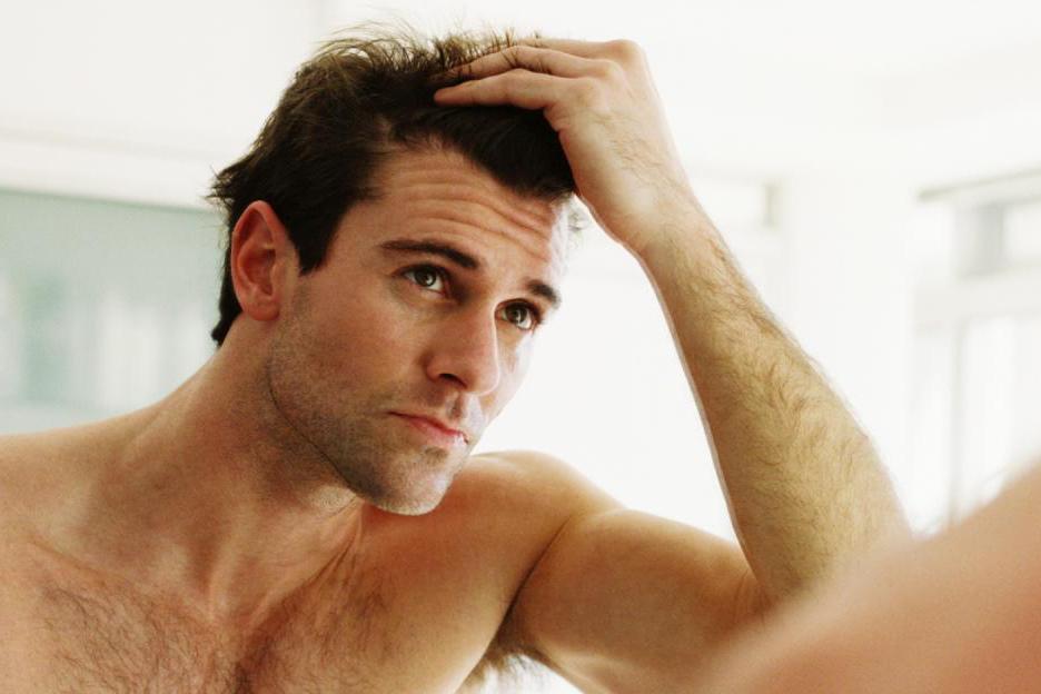 禿頭吃什麼禿頭前兆女禿頭治療前額掉髮頭頂禿治療01.jpg