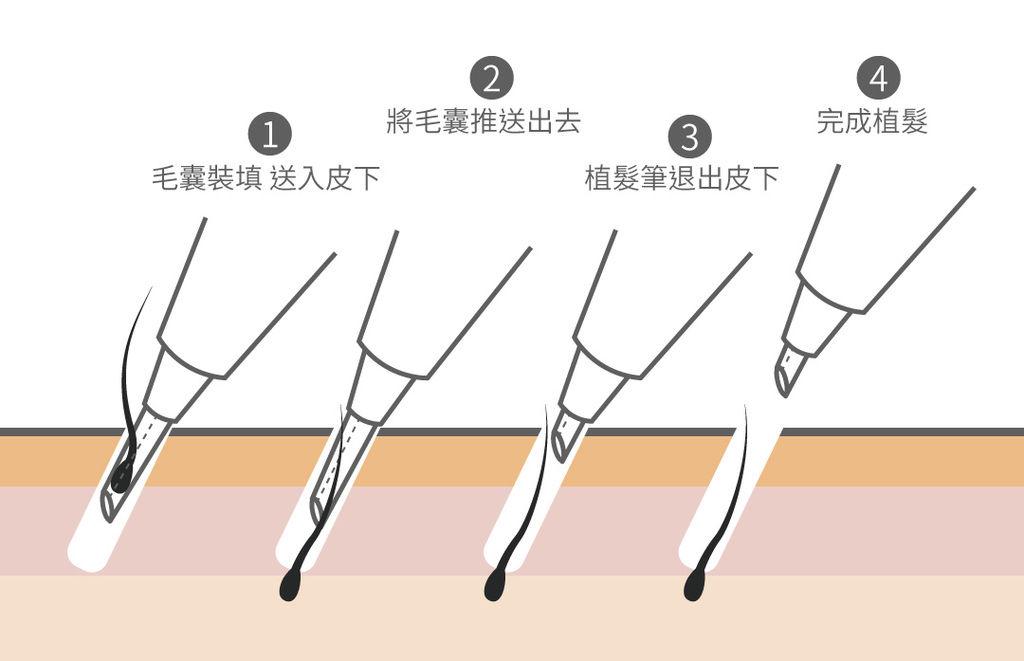 韓式植髮費用韓式植髮推薦韓式植髮經驗韓式植髮ptt02.jpg