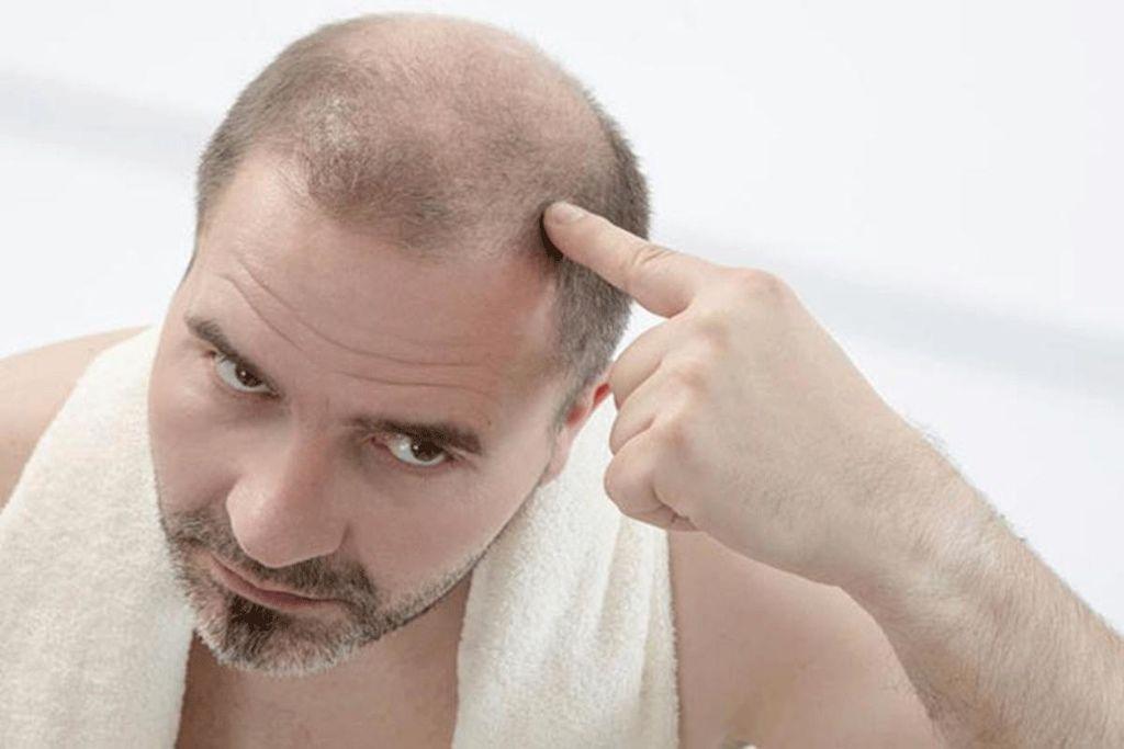 酸雨影響酸雨掉髮淋雨禿頭酸雨會不會禿頭酸雨皮膚頭頂禿頭如何治療禿頭01.jpg