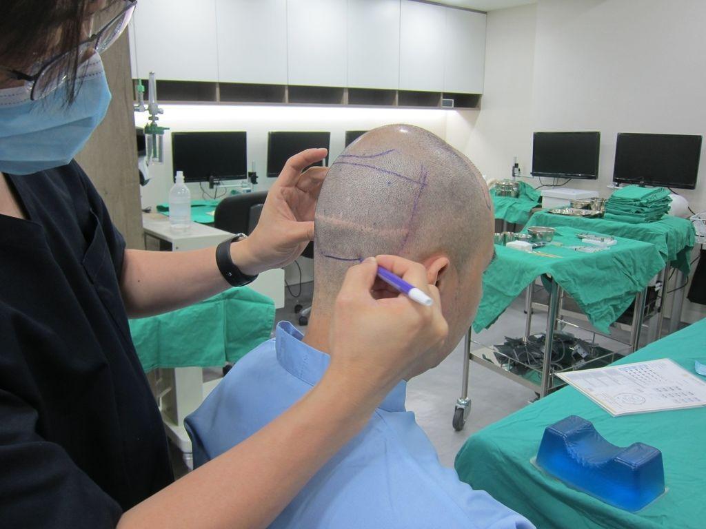 圓形禿看哪一科圓形禿會好嗎圓形禿飲食圓形禿怎麼辦圓禿類固醇副作用植髮診所04.jpg