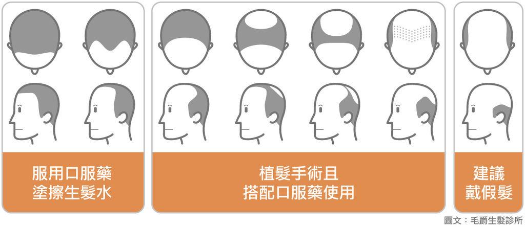 禿頭自我檢測頭髮怎樣算少正常掉髮髮根頭髮怎樣算多洗頭一次掉多少頭髮正常1.jpg