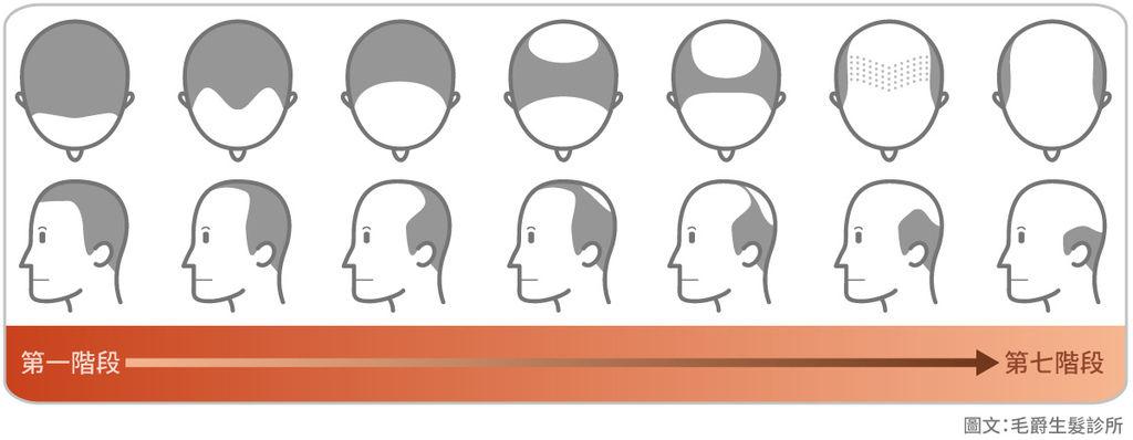 掉髮治療、大量掉髮原因、掉髮怎麼辦、大量掉髮看哪科、嚴重掉髮要看哪一科、突然掉髮嚴重、異常掉髮原因、禿頭原因、遺傳禿頭解決03.jpg
