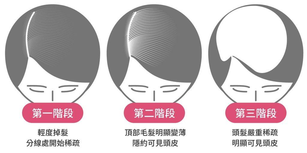 掉髮治療、大量掉髮原因、掉髮怎麼辦、大量掉髮看哪科、嚴重掉髮要看哪一科、突然掉髮嚴重、異常掉髮原因、禿頭原因、遺傳禿頭解決04.jpg