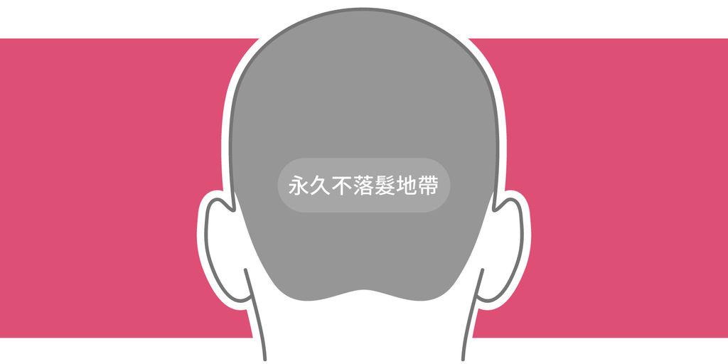 帽子戴久會禿頭、禿頭帽子、安全帽落髮、每天戴帽子、戴帽子長頭髮、戴帽子流汗、常戴安全帽禿頭05.jpg