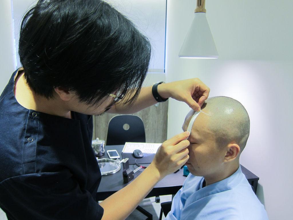植髮手術過程植髮疤痕醫院植髮蟹足腫是什麼蟹足腫原因蟹足腫類固醇3.JPG