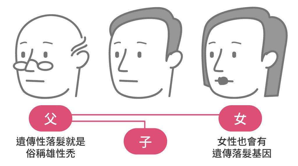 禿頭前兆禿頭原因治療禿頭的方法禿頭女禿頭種類禿頭藥禿頭看什麼科禿頭治療費用3.jpg