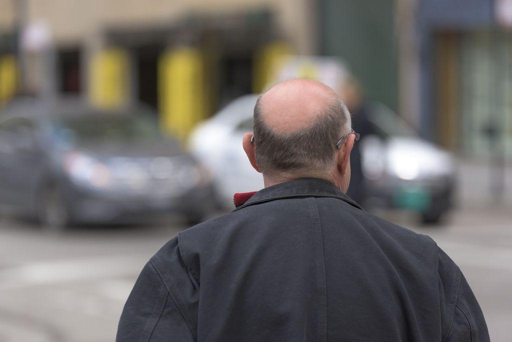 頭皮發炎症狀頭皮發炎掉髮頭皮發炎洗髮精頭皮紅頭皮屑禿頭毛囊炎禿頭頭皮紅腫1.jpg