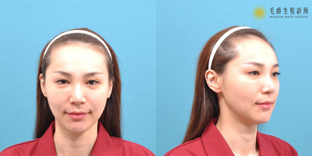 髮際線植髮費用髮際線植髮ptt髮際線紋植髮際線ptt增加髮際線髮際線是什麼半永久髮際線髮際線高02.jpg