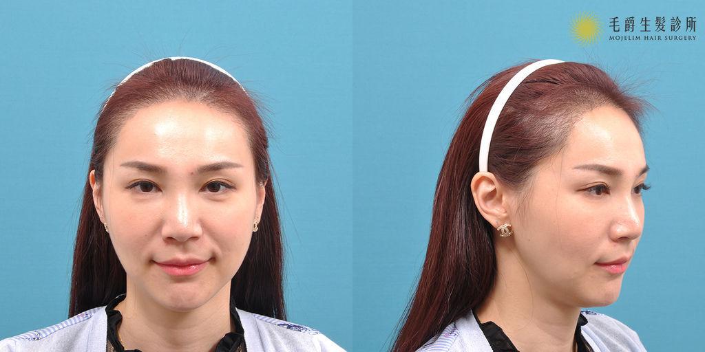 髮際線植髮費用髮際線植髮ptt髮際線紋植髮際線ptt增加髮際線髮際線是什麼半永久髮際線髮際線高03.jpg