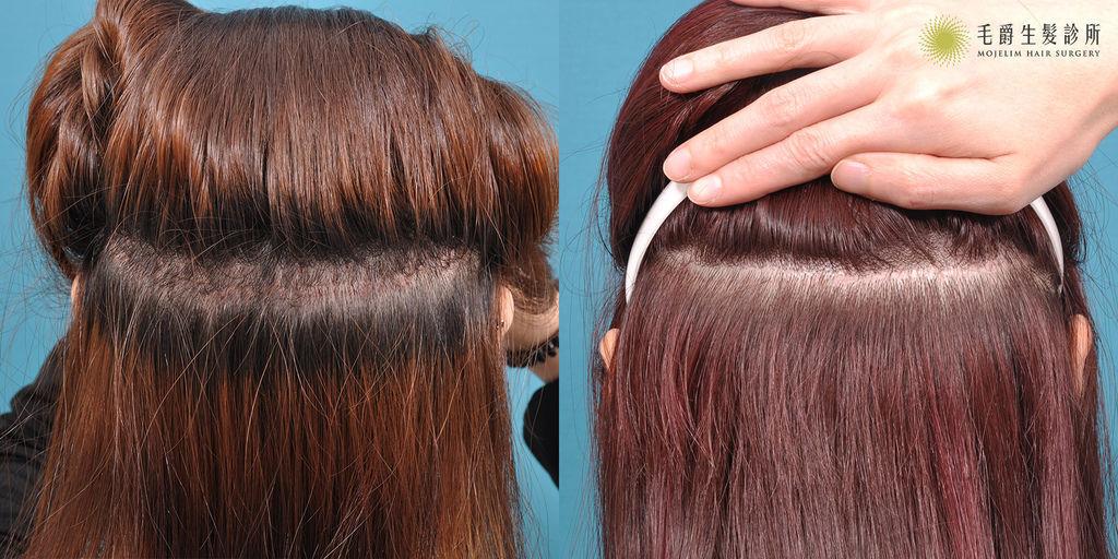 髮際線植髮費用髮際線植髮ptt髮際線紋植髮際線ptt增加髮際線髮際線是什麼半永久髮際線髮際線高06.jpg