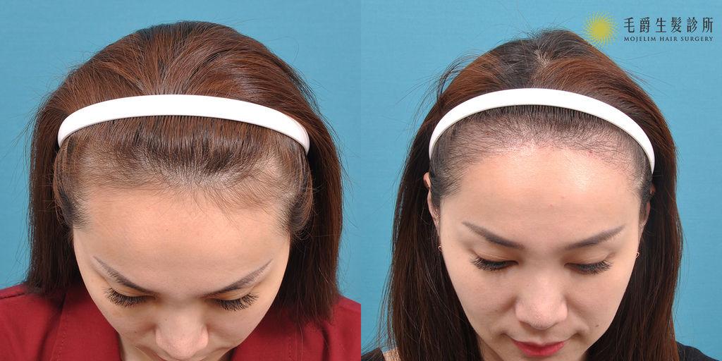 髮際線筆ptt髮際線筆推薦mamonde髮際線修容粉innisfree髮際線ptt夢妝髮際線紋髮際線ptt髮際線遮瑕5.jpg
