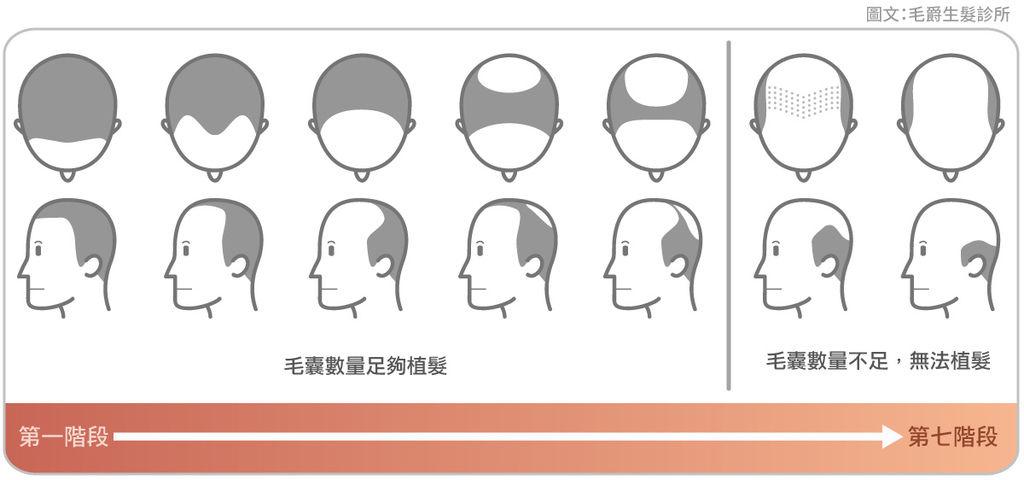 假髮植髮原理植髮心得植髮手術費用植髮推薦植髮討論區各程度掉髮治療方式-改.jpg