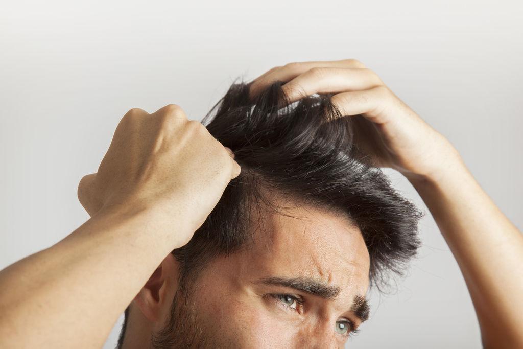 【雄性禿】即早發現、即早治療,改變雄性禿的「禿頭」命運! (1).jpg