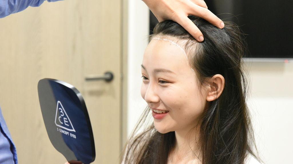 【植髮加密】不只禿頭要植髮!頭髮稀疏、扁塌其實更難看_F (1).JPG