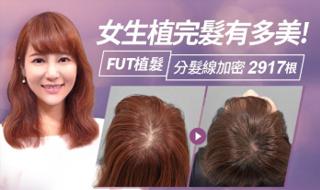 【分髮線加密】幼兒園園長薇薇的無痛感美形植髮體驗|FUT植髮-2917根|女性植髮案例 毛爵生髮診所