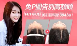 調整過高的髮際線,可創造精緻的小臉效果