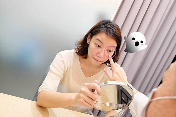 消除眼袋型淚溝初體驗-公主玻尿酸微整完整記錄-台中醫美診所玻尿酸33.jpg