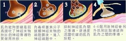 肉毒除皺的作用原理圖.jpg