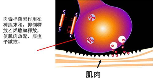 肉毒桿菌放鬆肌肉的作用原理-鐘馨診所.jpg