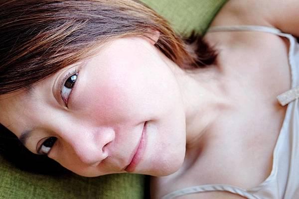 杜鵑花酸、果酸換膚、粉刺、痘痘、閉鎖粉刺_200908_1.jpg