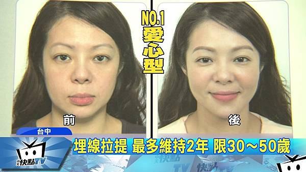 線雕拉提後遺症-中天新聞.jpg