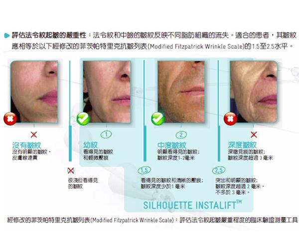 線雕拉提的術前評估不同肌膚鬆弛程度-米蘭診所1.png
