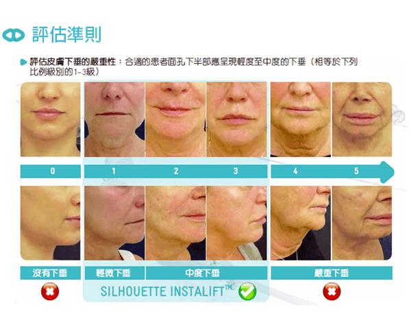 線雕拉提的術前評估不同肌膚鬆弛程度-米蘭診所.png